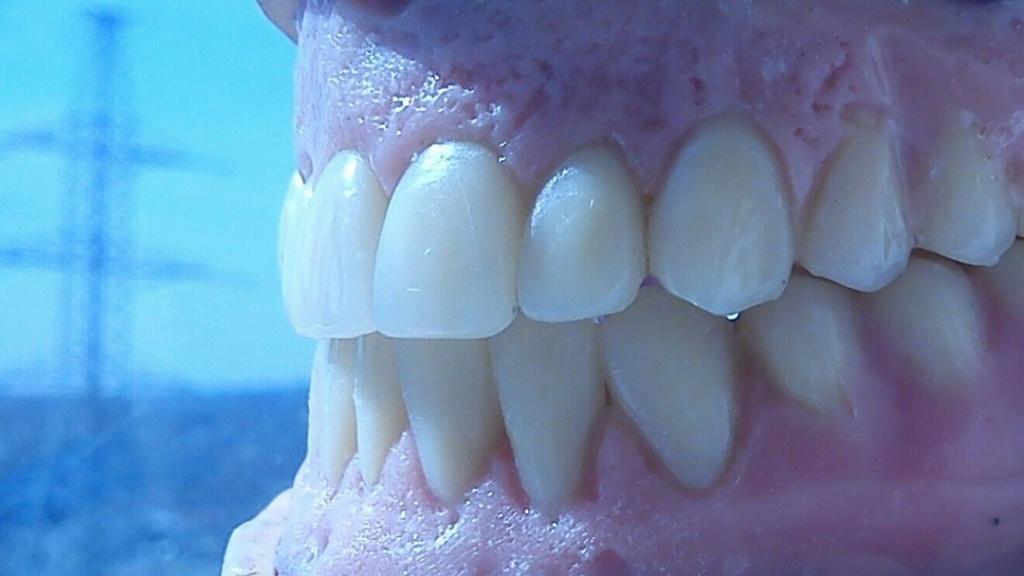 Предварительная постановка импортных зубов